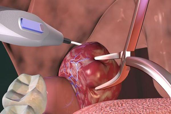 хирургические методы лечения гланд