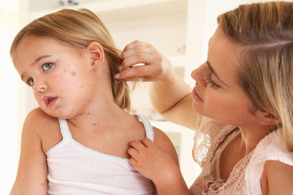 симптомы скарлатины у девочки