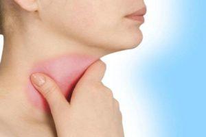 симптомы воспаления связок горла