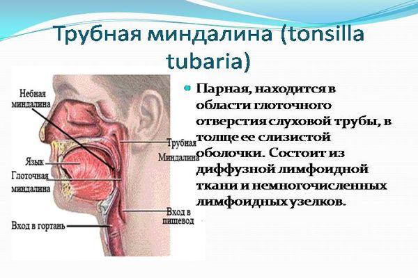 трубная миндалина